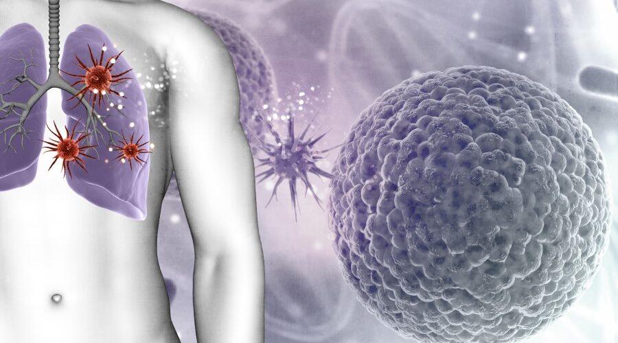 Lung cancer - Easy Durvalumab Dosing - 2 MCQs