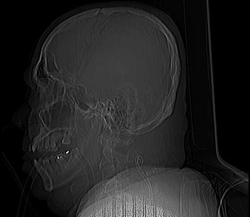 ICH - Case Review With Massive ICH, IVH, Brain Edema and Acute HC